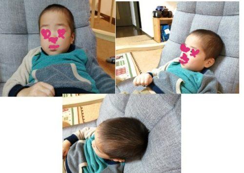 元早産児の4歳の頭の形